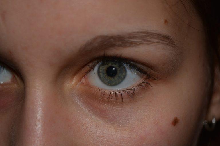 Badanie pieprzyków i zmian na skórze pomoże wykryć wczesne stadium czerniaka